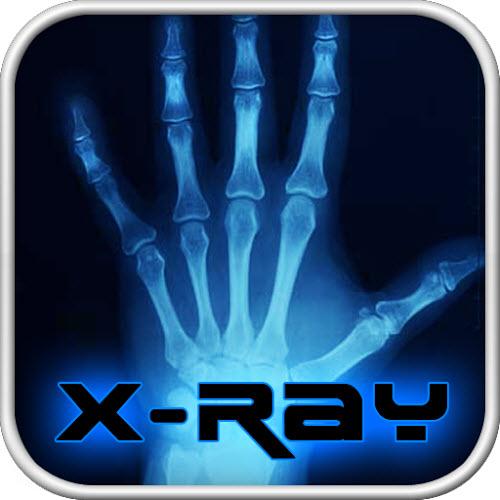 Crazy Xray